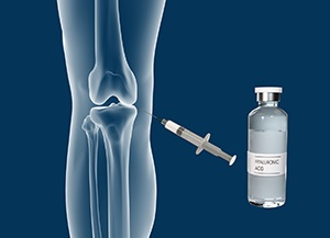 Combined Hyaluronic Therapy for the Knee