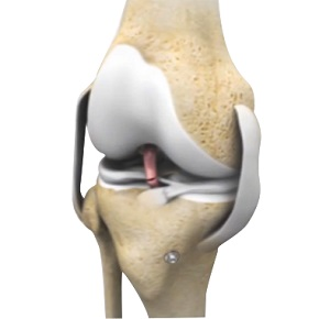 Failed Anterior Cruciate Ligament (ACL) Reconstruction
