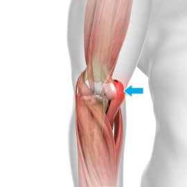 Hyperextension Injury of the Elbow