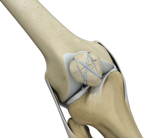 Knee Fracture Surgery