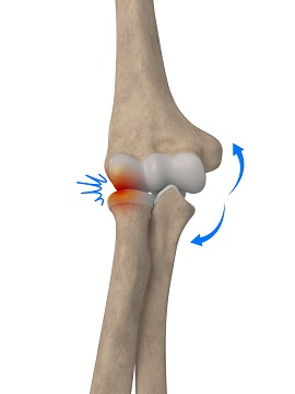 Lateral Impingement of the Elbow