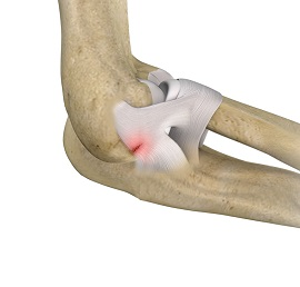 Lateral Ulnar Collateral Ligament Injuries Elbow