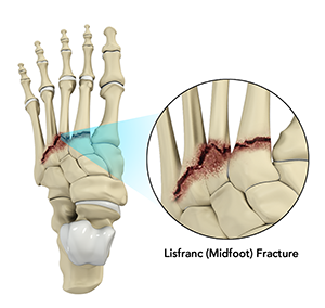 Lisfranc (Midfoot) Injury