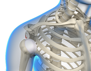 Multidirectional Instability of the Shoulder