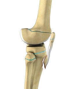 Pediatric Tibial Tubercle Fractures