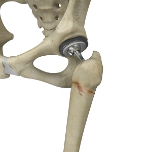Periprosthetic Hip Fractures