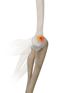 Posterior Impingement of the Elbow
