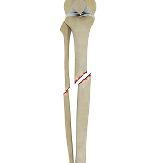 Tibial Shaft Fracture